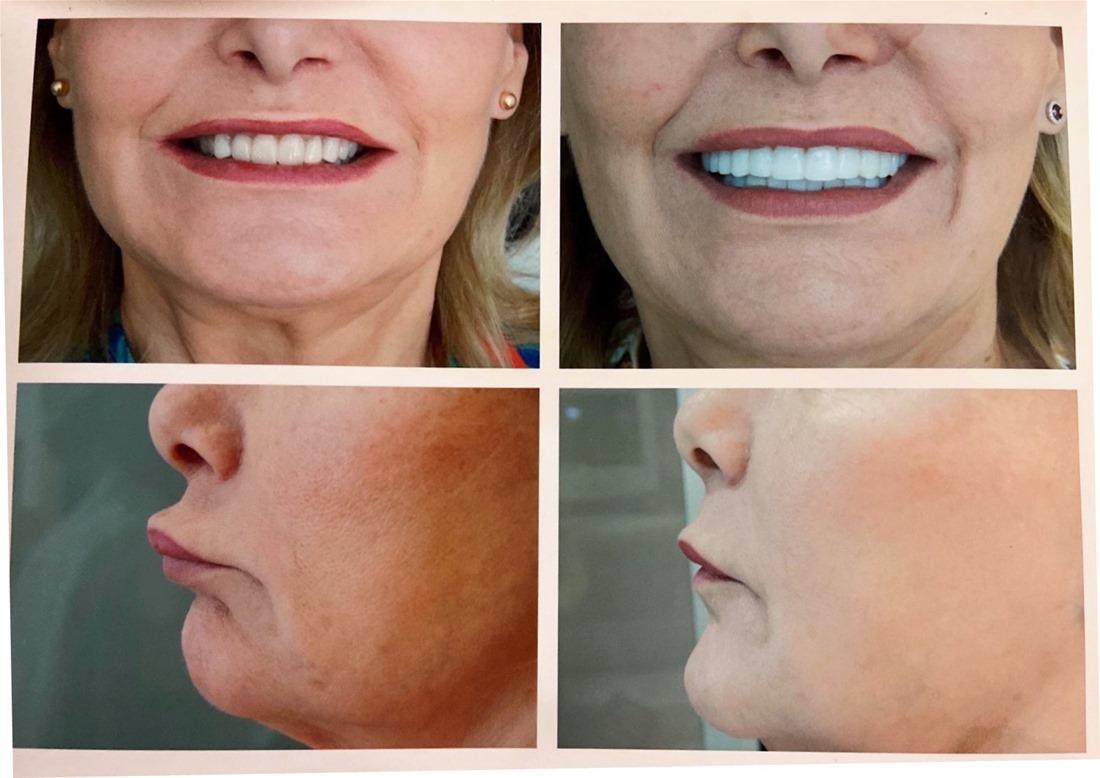 Αισθητική Οδοντιατρική: Πως «μεταμορφώνει» το πρόσωπο