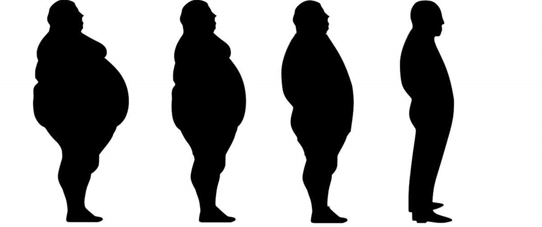 Η επέμβαση που θεραπεύει την παχυσαρκία
