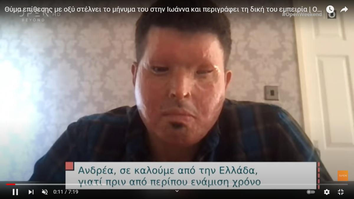Θύμα επίθεσης με οξύ στέλνει το δικό του μήνυμα στην Ιωάννα (VIDEO)