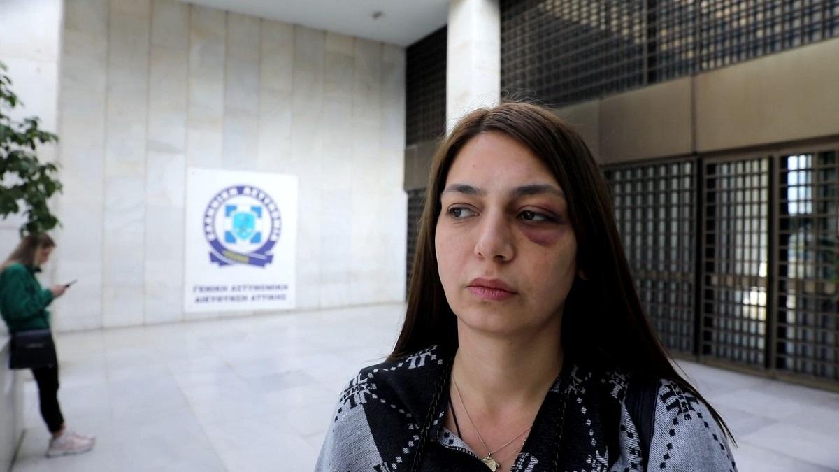 Ζητάει εξηγήσεις η βουλευτής του ΜέΡΑ 25 που δέχθηκε επίθεση απο αστυνομικούς (VIDEO)